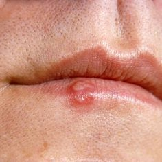 Home Remedies For Cold Sores - Natural Treatments & Cure For Cold Sores | Find Home Remedy