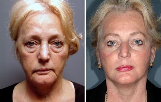 Components Of A Facelift Without Surgery: Yoga Facial Aerobics Fit The Bill Perfectly And Naturally!