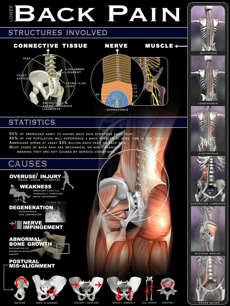 Lower Back Pain Infographic with lots of details for those suffering from acute…