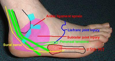 Tendinitis foot | Fabulously FoUrTy! | Pinterest