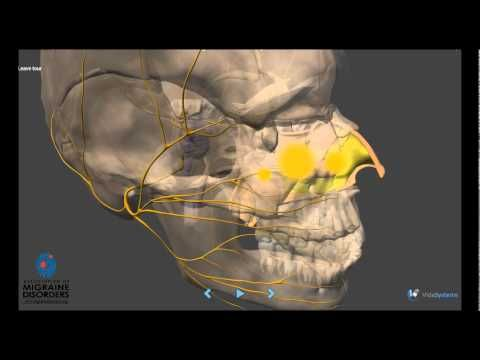 Migraine Pathophysiology video - Association of Migraine Disorders. Take a journey into the brain of migraineur. This video is a dramatization of current understanding and speculation on the root cause of migraine headaches and related disorders. Learn more about your migraines!