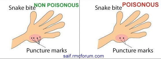 Pin by Dawn Dayton on Good to Know | Snake, Poisonous ...