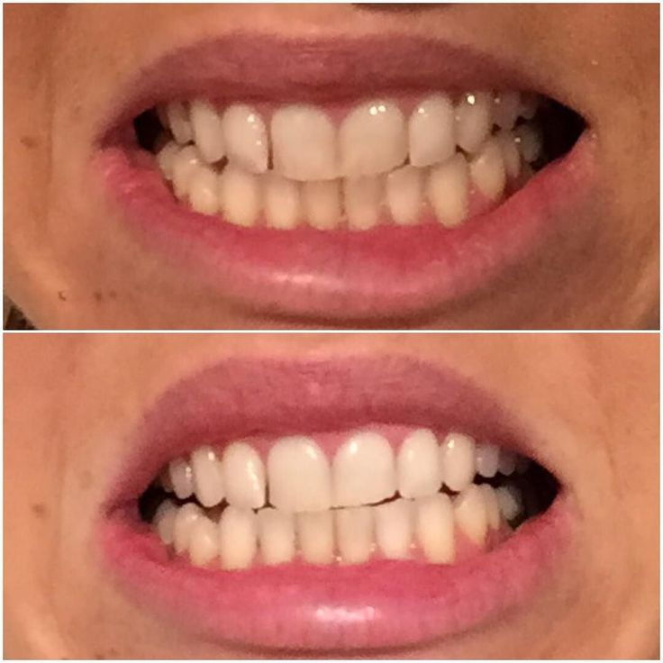 R E S U L T S  This is after the first use of EBONiiVORY activated charcoal teeth whitening powder. Top-before Bottom-after As a drinker of 3-4 coffees a day this product is amazing for removing stains and brightening teeth. #eboniivory #teethwhitening #results #before #after #natural #charcoal #holistic #health #beauty #smile by eboniivory_ Our Teeth Whitening Page: http://www.myimagedental.com/services/cosmetic-dentistry/teeth-whitening/ Other Cosmetic Dentistry services we offer…