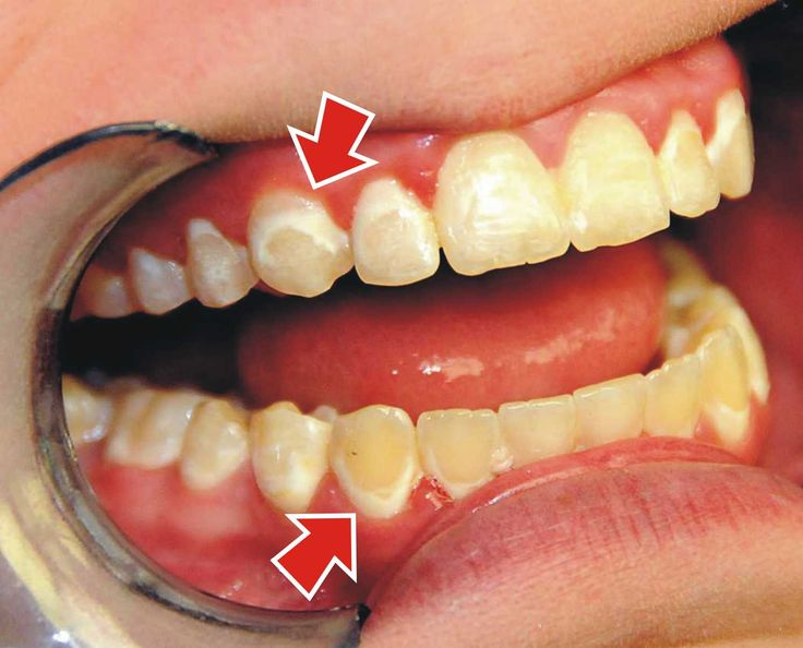 Don't let your teeth end up like this - these PERMANENT stains are 100% preventable with proper brushing and fluoride use.  If you're having problems with brushing, we're happy to show you how!