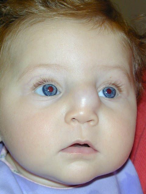 Image result for dermoid cyst nose