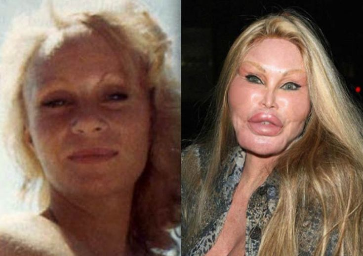 Catwoman plastic surgery disaster
