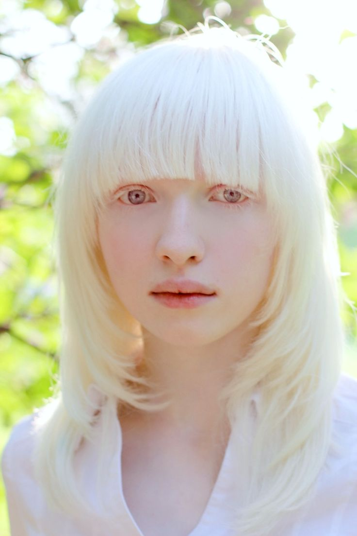 Albino girl #8