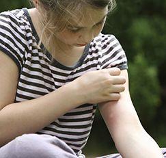 meisje met een muggenbeet, krassen de hand heeft motion blur