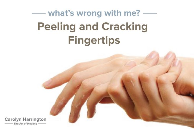 Recently, a woman was referred to me by a friend. The skin on herfingertips was cracked, peeling and she was in pain. After multiple doctor visits, and trying various medications like cortisone creams, she was no closer to solving the problem. She wanted to get to the root of the problem and find out if …