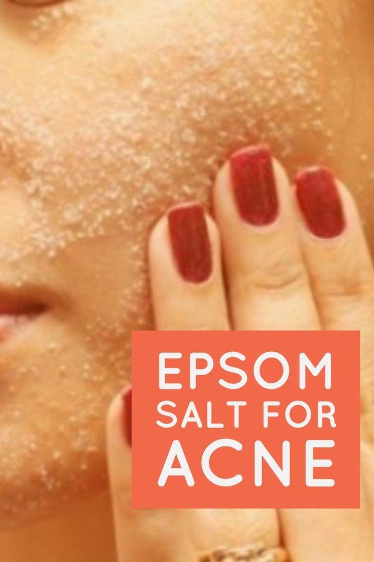 Best 25+ Acne remedies ideas on Pinterest   Natural acne treatment ...
