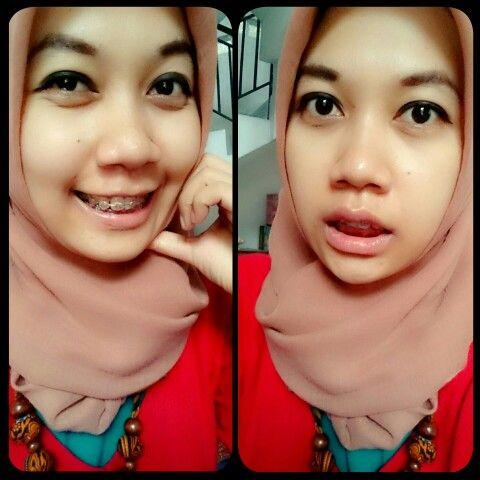 Smile shocked