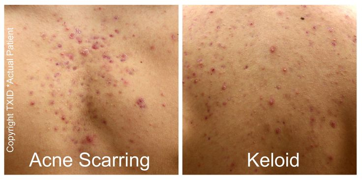 with the worsee case sinario acne scars could easliy become kelods