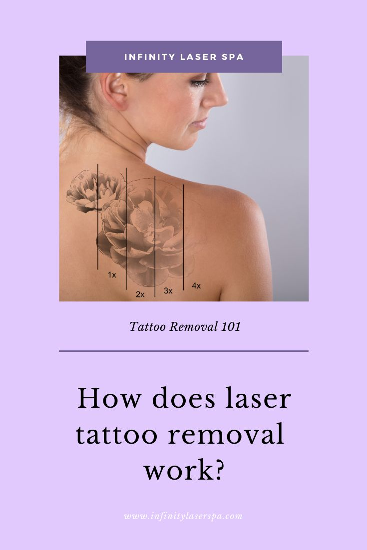How does laser tattoo removal work infinity laser spa