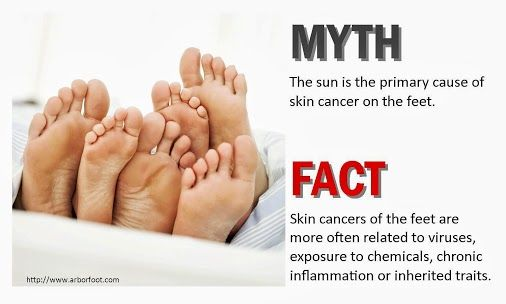 Skin cancer of the foot is not always about sun exposure