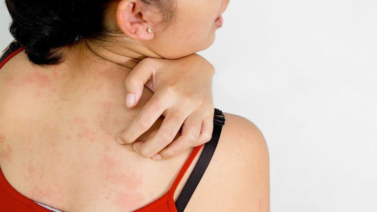 Quick Facts on Discoid Lupus | | Health Digezt