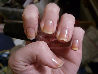Nail Stains: How to avoid and remove them