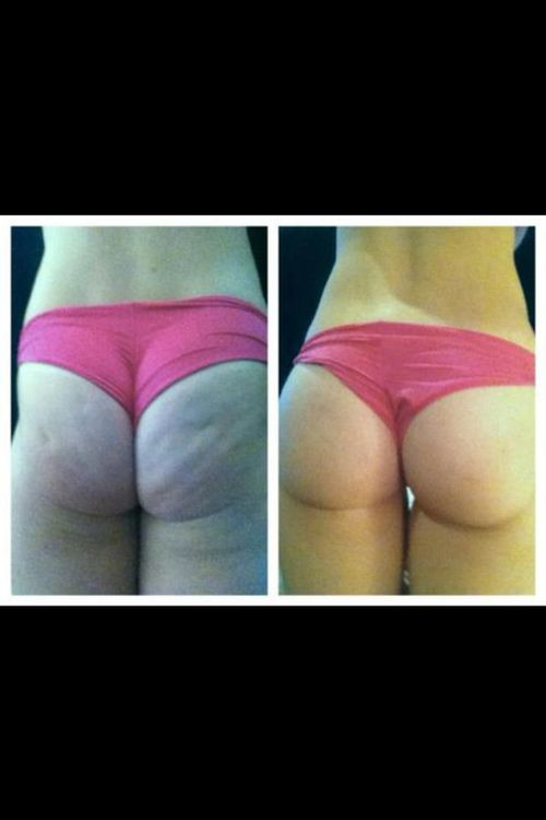 this is what squats can do for you
