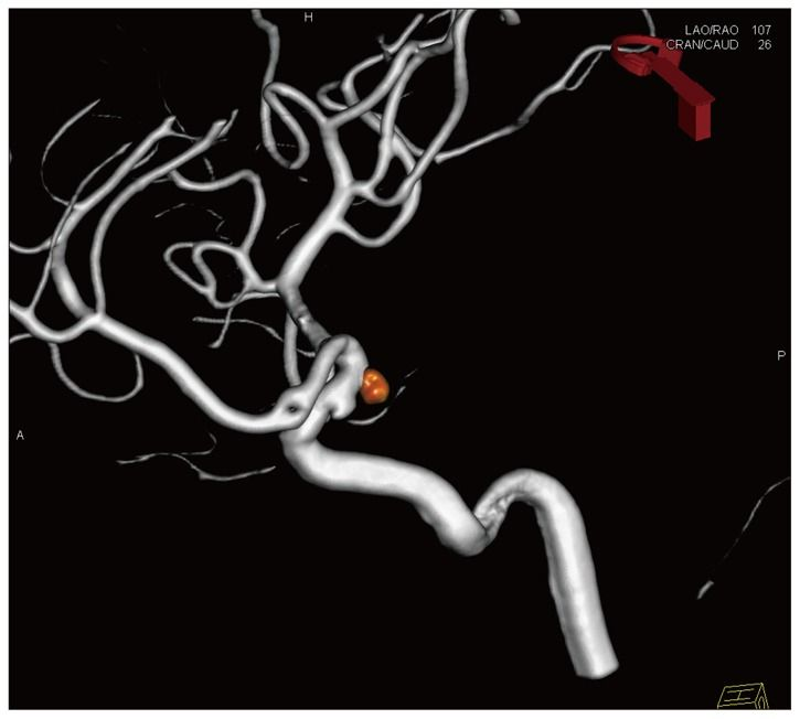 "Fig. 2  Anteroposterior view of postembolization right internal carotid artery angiography demonstrating complete occlusion of aneurysm preserving a posterior communicating artery.   Citation: Youn Hyuk Chang, Sung-Kyun Hwang, (2013), ""A Case of Cerebral  Aneurysmal Subarachnoid Hemorrhage in Fabry's Disease"" (Case Report),  Journal of Korean Neurosurgical Society 2013; 53(3): 187-189."