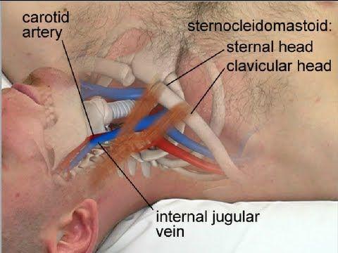 Central line insertion anatomy