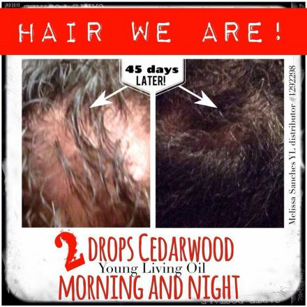 Wow!  Young Living Cedarwood oil for Hair Loss!