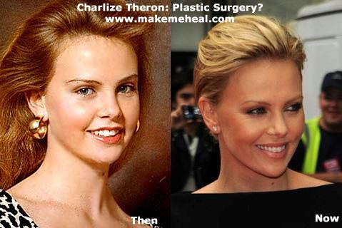 Charlize Theron Plastic Surgery Always interesting what you can find when you type in elective surgery and other related terms