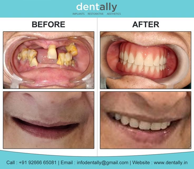 Fantastic Pics Whole Mouth Dental Implants Suggestions As Told By