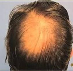 Get The Best Value For Hair Transplant Cost