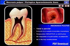 PDF: Necrosis Pulpar, Síntomas y Tratamiento | OVI Dental