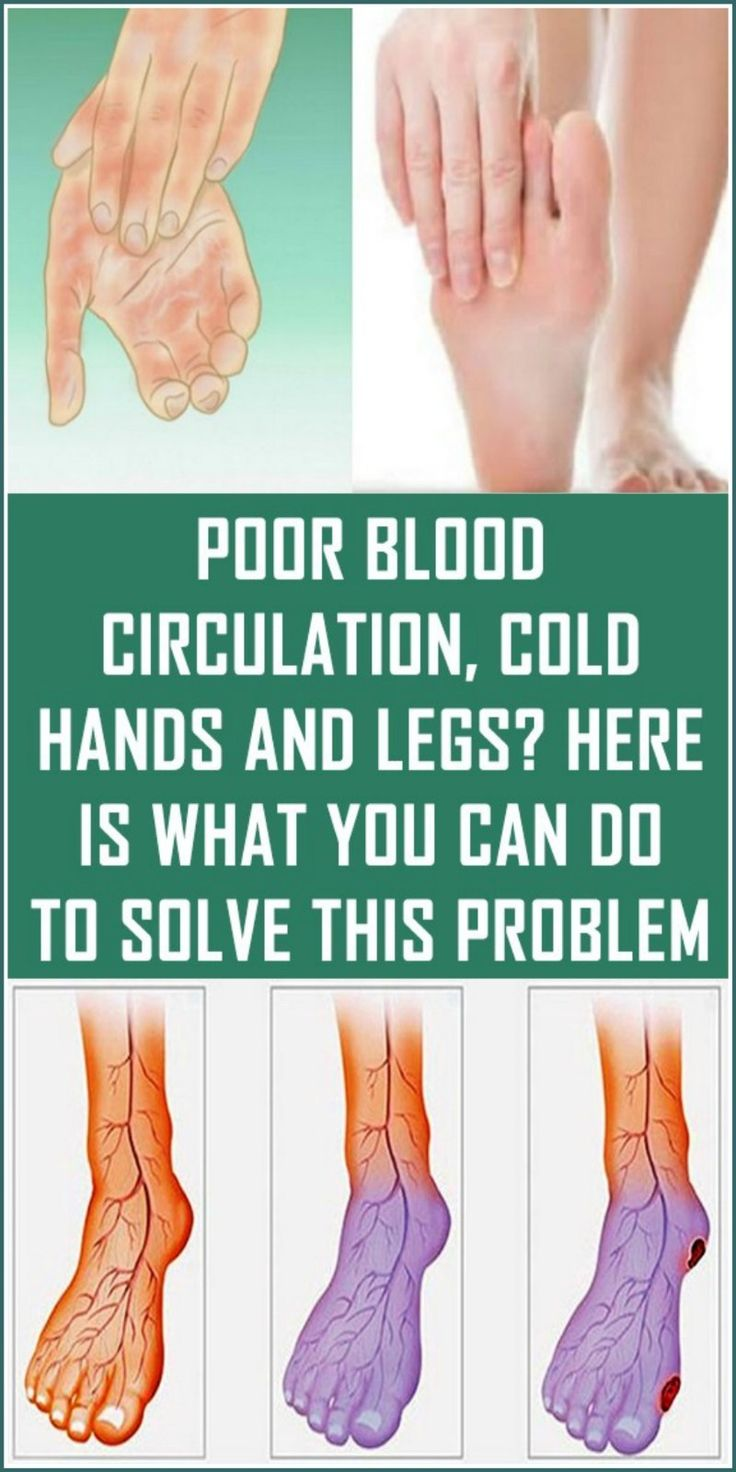 Poor Blood Circulation, Cold Hands and Legs? Here is What