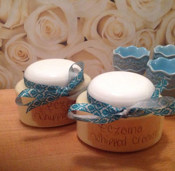 Whipped Eczema Creme by AngelsCremeBrulee on Etsy