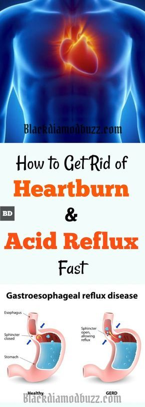 Instant Natural Heartburn Relief |How to Get Rid of Heartburn Fast