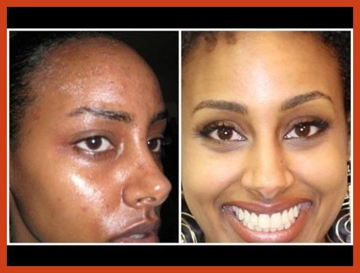 Acne Scar Removal - Tips For Acne Scar Removal ** Visit the image link for more details. #naturalsoaps