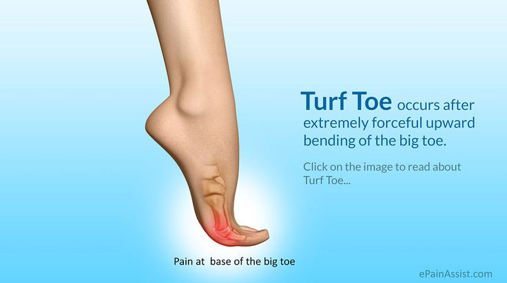 Turf toe occurs after extremely forceful upward bending of the big toe.. know the symptoms, causes, treatment and recovery period or healing time for turf toe.