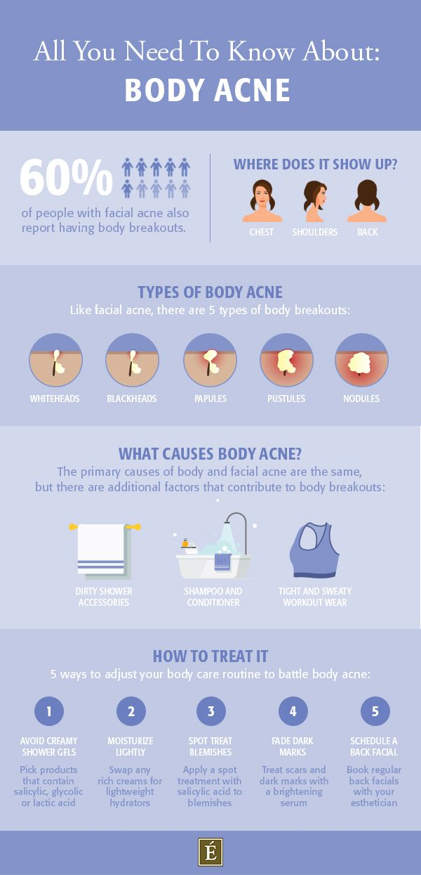 Body Acne How To Get Rid Of Breakouts On Your Back Chest