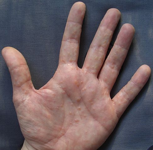 #Eczema on hands, also known as hand dermatitis, is a very common disease affecting about 4% of men and 10% of women. It starts with a mild redness and dryness. Scaling will increase, leading to crusting and fissuring. The affected areas can become itchy and can become severe if you scratch or rub. Eczema of the hands has proven to be the challenge to treat effectively.