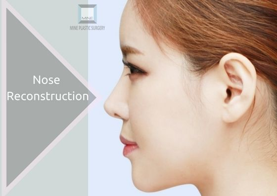 1000+ Ideas About Nose Surgery On Pinterest