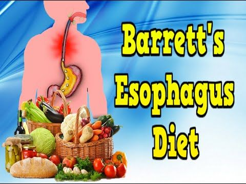 What Are The Best Foods To Eat With Barrett S Esophagus