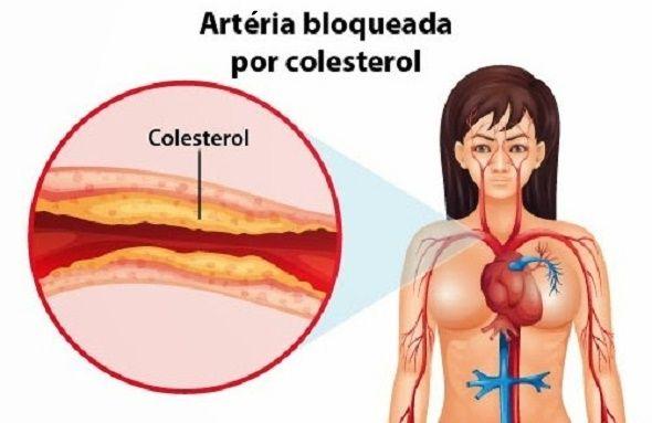 O colesterol tem a aparência de uma cera.Ele é produzido no fígado.O colesterol não é um vilão.Ele é essencial para o correto funcionamento do organismo.