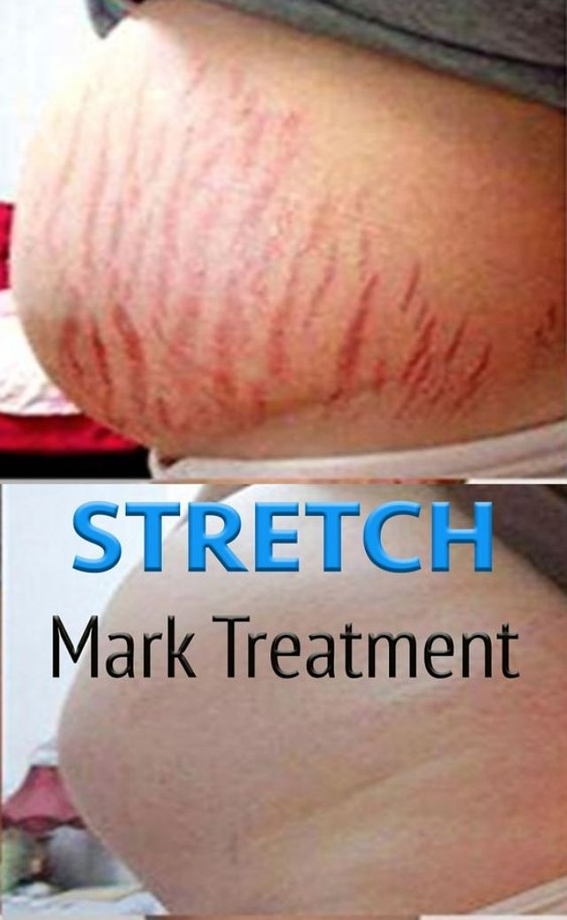 DIY STRETCH MARK CREME FÜR SCHWANGERSCHAFT – Easy and Healty