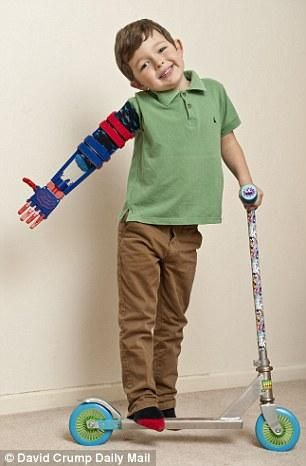 3ders.org - E-Nable designs young UK child a new superhero-inspired 3D printed arm | 3D Printer News & 3D Printing News