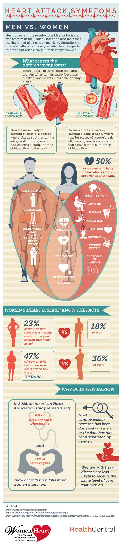 Heart Attack Symptoms :Male vs. Female Infographic #Infographics