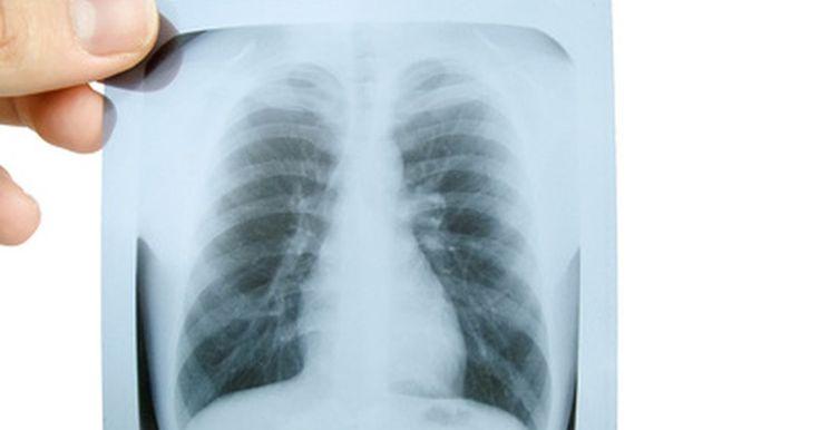 O que é uma grade antidifusora de raios X?. Uma grade antidifusora é a parte da máquina de raios X que filtra a radiação dispersa, que pode obscurecer ou borrar a imagem que será produzida. A grade foi inventada em 1913.