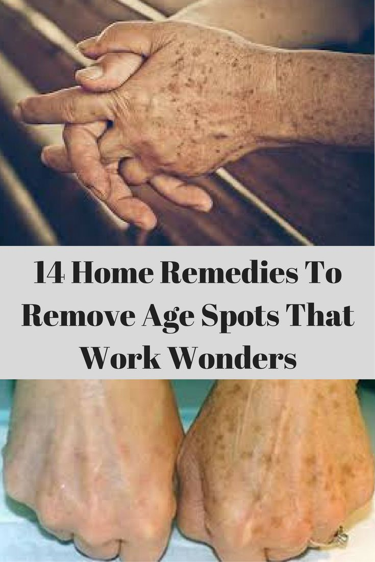 14 Home Remedies To Remove Age Spots That Work Wonders