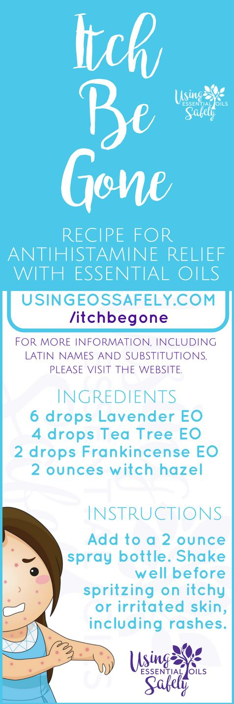 Itch-Be-Gone – recipe for antihistamine relief with essential oils | Using Essential Oils Safely