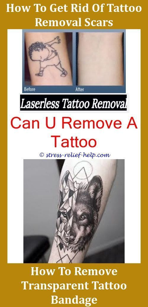 Most Effective Tattoo Removal How Much Does Excision Tattoo