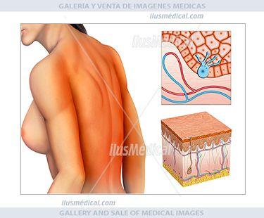 Quemadura solar de piel por rayos ultravioleta. Ilustración de una mujer con quemadura solar en ....