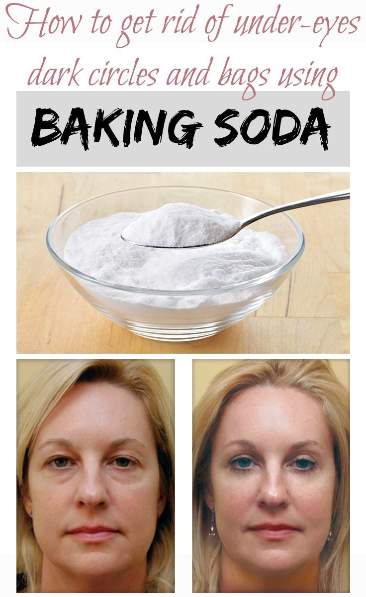Source: Treatdark circles and bags using baking soda  One of the most common beauty problems women face these days is black circles un...