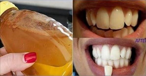 Se avete i denti gialli e volete renderli più bianchi ed in poco tempo, ecco una ricetta naturale che risolverà il vostro problema in poco tempo!