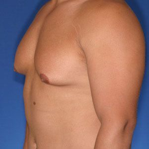 Candidate for male breast reduction surgery: Surgical removal of breast tissue is often the preferred technique to ensure all necessary breast tissue is removed.