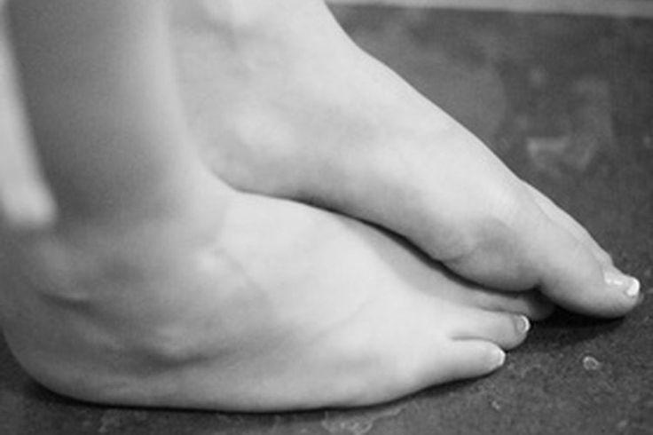 Cómo aliviar el dolor de pies causado por permanecer parado durante 10 horas al día   Muy Fitness